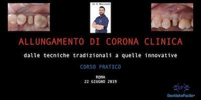 Allungamento corona clinica - Corso Pratico