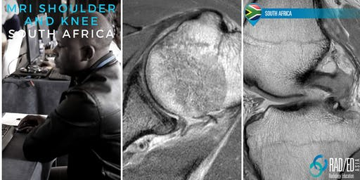 Radiology Conference JOHANNESBURG SOUTH AFRICA Knee and Shoulder MSK MRI Mini Fellowship and Workstation Workshop 20th - 21st July 2019: Radiology Education Asia
