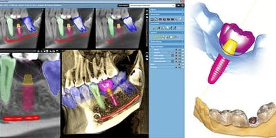 Planmeca Romexis 3D Implant Workflow/Live Patient Surgical Course