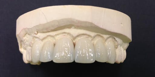 Planmeca Digital Smile Design/Advanced Case Finishing