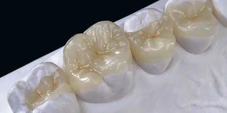 Planmeca CAD/CAM Modern Adhesive Ceramic Dentistry Principles/Prep Course tickets