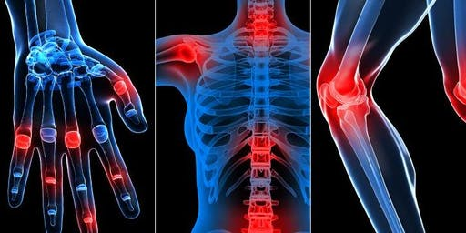 Parkside Hospital presents a GP Lecture - Rheumatology Update