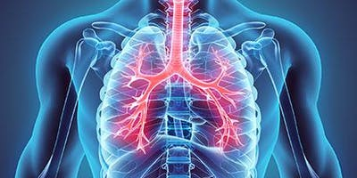 Management of Chronic Obstructive Pulmonary Disease in Primary Care, Glasgow