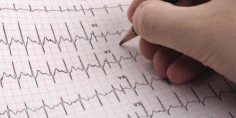 SCST Diploma in ECG Interpretation Course - Birmingham - September 2019 tickets