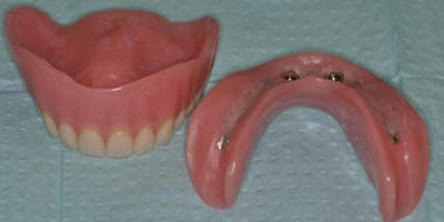 ABC's of Conventional & Implant Supported Complete Dentures