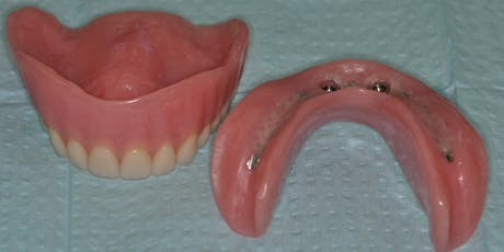 ABC's of Conventional & Implant Supported Complete Dentures tickets