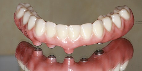 Conventional & Implant Supported Removable Partial Dentures tickets