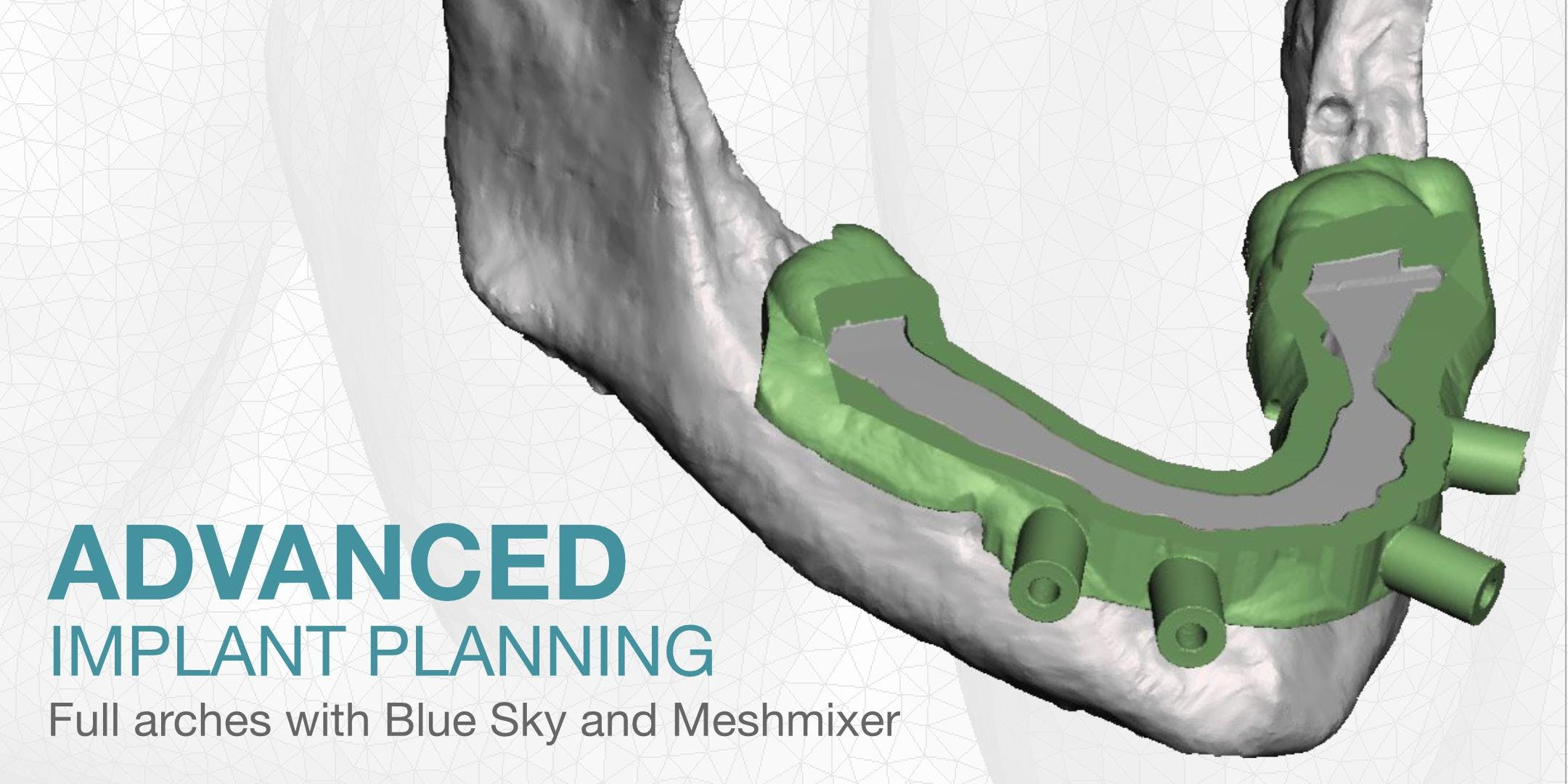 Advanced Implant Planning - AZ
