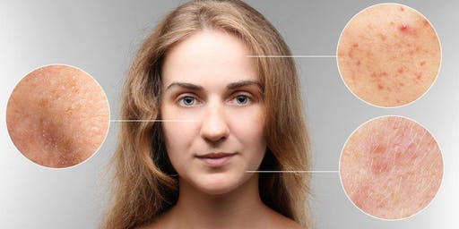 Je prends ma santé en main: Acné, psoriasis et eczema