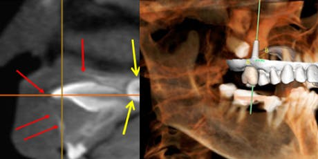 Level 1 CONE BEAM CT: How to read Scans like Pans! tickets