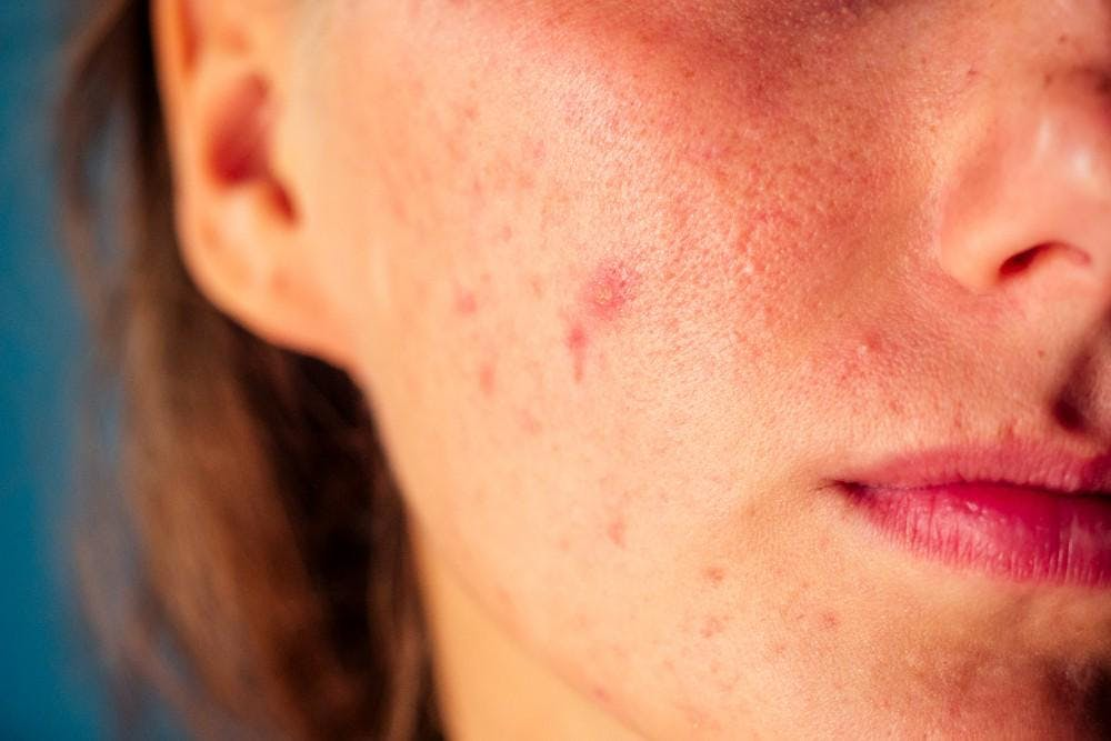Diagnosis and Management of Rosacea, Acne and