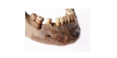 Dental Anthropology Workshop tickets