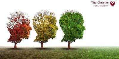 Dementia and Delirium - Southampton
