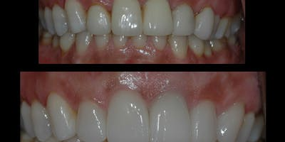 Maximizing Esthetics with Laminate Veneering: A Hands-On Course