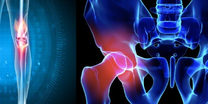 Day Case Hip & Knee Arthroplasty