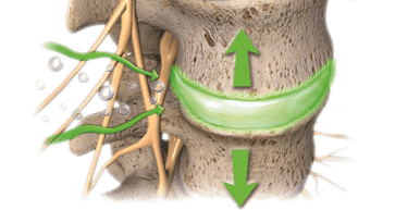 Managing Disc Pathology with Spinal Decompression Therapy-Hobart