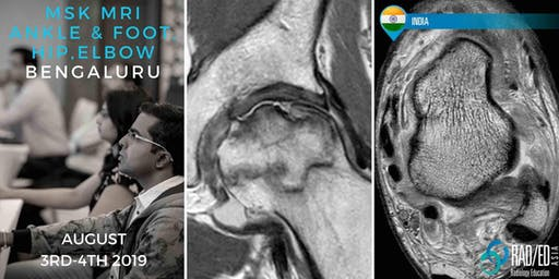 Radiology Conference Bangalore INDIA MRI Ankle & Foot, Hip and Elbow Mini Fellowship and Workstation Workshop 3rd - 4th August 2019: Radiology Education Asia