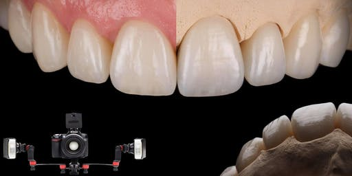 ADANT - Dental Photography - Key for Successful Anterior Restorations : By Szabolcs Hant