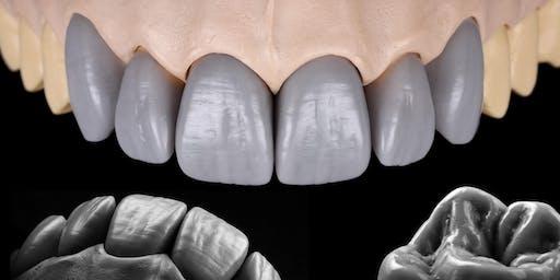 ADANT - Key to success: Diagnostic wax-up in the aesthetic zone. Design - Shape - Morphology : Szabolcs Hant