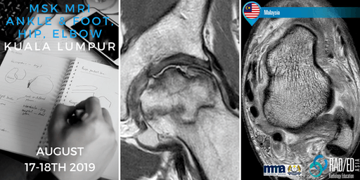 Radiology Conference Kuala Lumpur MALAYSIA MRI Ankle & Foot, Hip and Elbow Mini Fellowship and Workstation Workshop 17th - 18th August 2019: Radiology Education Asia