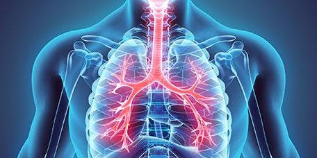 Management of Chronic Obstructive Pulmonary Disease in Primary Care, Newcastle