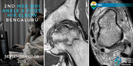 Radiology Conference Bangalore INDIA 2nd MRI Ankle & Foot, Hip and Elbow Mini Fellowship and Workstation Workshop 7th - 8th September 2019: Radiology Education Asia