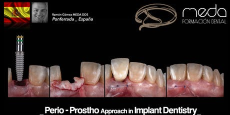 Soft Tissue Management and Grafting in the Esthetic Area tickets