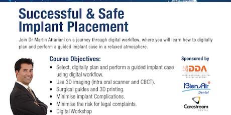 Digital Dental Implant Workflow tickets