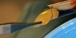 Derivados Sanguíneos Aplicação em Medicina Dentária -...