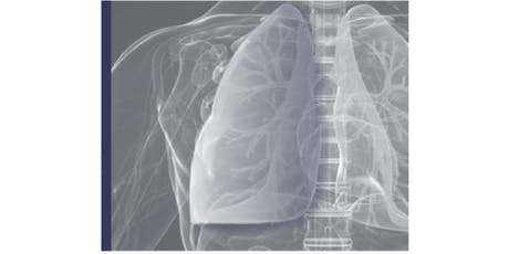 Lung Cancer Screening Pilot for People at High Risk tickets