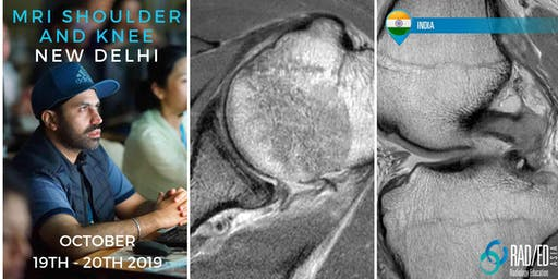 Radiology Conference NEW DELHI INDIA Shoulder and Knee MSK MRI Mini Fellowship and Workstation Workshop 19th - 20th October 2019: Radiology Education Asia