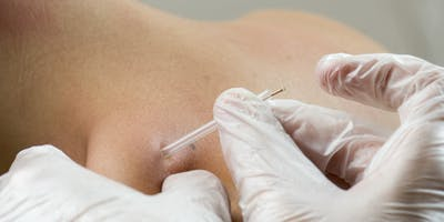 LIVE UE Dry Needling Course for Physical Therapists