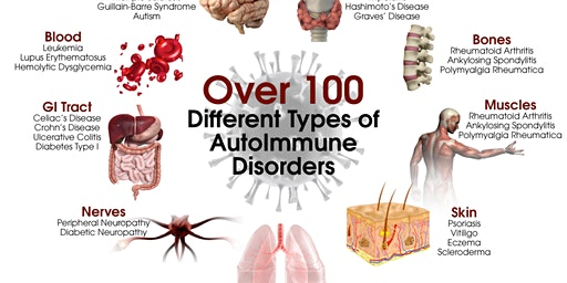 Autoimmunity and Nutrition