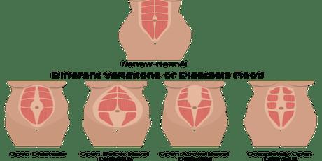 Healing Diastasis Recti tickets