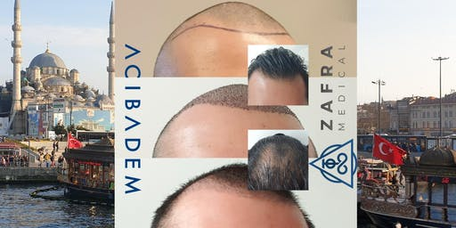 FREE Hair Transplant Consultation in Bristol