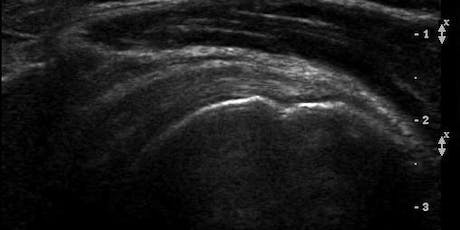 Musculoskeletal Ultrasound Imaging Series For The Non-Sonographer tickets