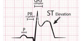 Cardiac CEU