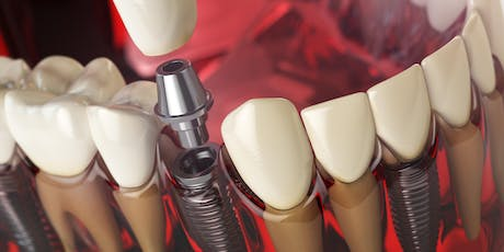 Principles and Practice of Implant Dentistry tickets