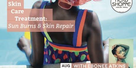 Skin Care Treatment: Sunburns and Skin Repair tickets