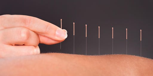 100 Hour Acupuncture Program Chicago