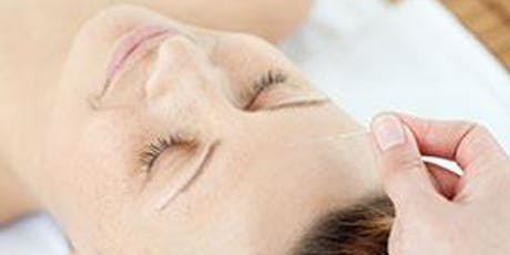 Acupuncture for a Medicated Cycle (Webinar) tickets