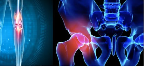 Day Case Hip & Knee Arthroplasty Newcastle tickets