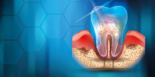 Periodontitis: The New Classification. (For all the team)