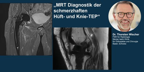 MRT Diagnostik der schmerzhaften Hüft-und Knie-TEP Tickets