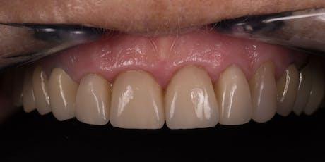 Le patient au cœur de la dentisterie numérique billets