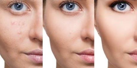 1 Day Scalp Micropigmentation Training $2,500 MIAMI ***Includes