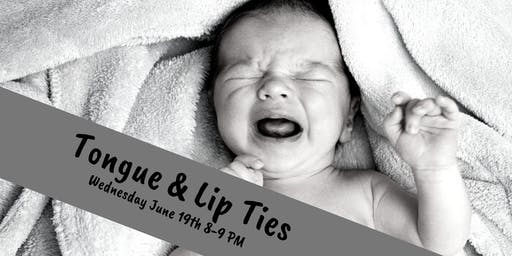 Tongue & Lip Ties