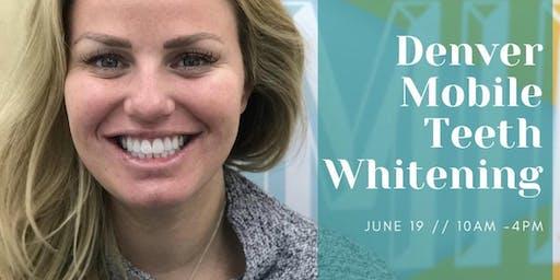 Denver Mobile Teeth Whitening @ Denver Milk Market