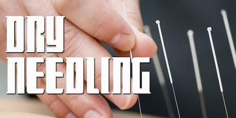 Terapia Manual Intramuscular(T.M.I) - Dry Needling no Controle da Dor   SP ingressos