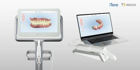 BEGO e iTero: Ventajas del escaneado intraoral entradas